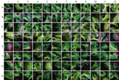 Exemple de criblage de super-résolution sur le cytosquelette de cellules cancéreuses.