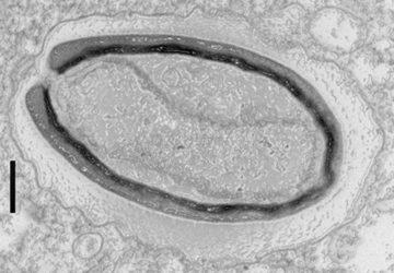 Les Pandoravirus questionnent l'origine de la vie