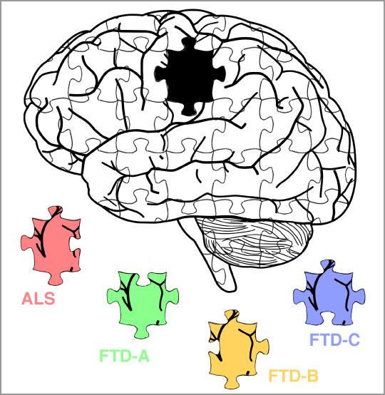 Dans la maladie de Charcot (amyotrophic lateral sclerosis, ALS) ou plusieurs types de maladie de Pick (frontotemporal dementia, FTD), des assemblages pathologiques de protéines distincts ont été identifiés, ayant des propriétés neurotoxiques différentes. Ces pièces manquaient au puzzle…