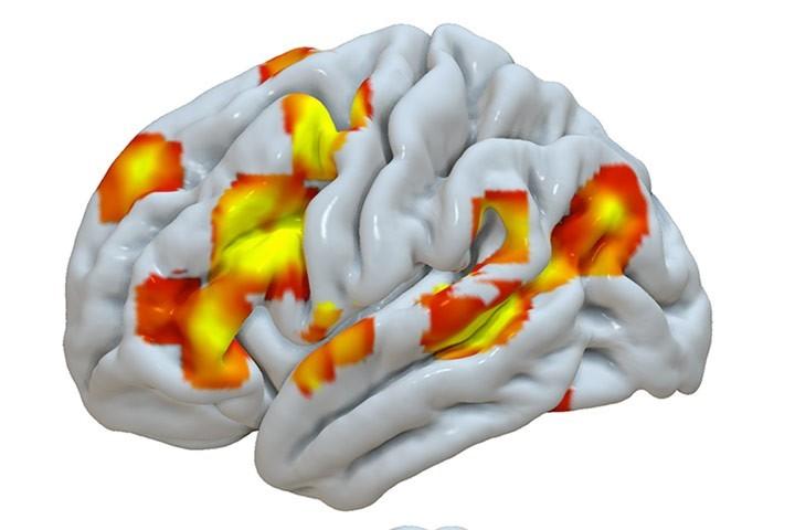 B. Mazoyer et al dans Genes Brain Behav.