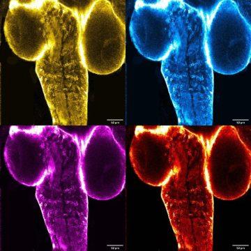 12 - Pop-Art of the larva's brain