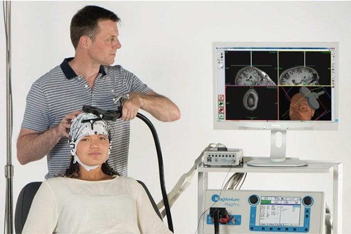 La Stimulation Magnétique Transcranienne répétitive à la PAM