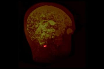Sciences participatives : analyser des images IRM pour faire avancer la science