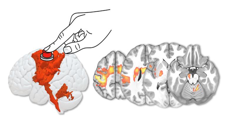 © Michel Thiebaut de Schotten Figure : Activation des réseaux cérébraux associés à une tâche motrice manuelle (main droite). A gauche vue latérale de l'hémisphère cérébral gauche avec ses activations. A droite, coupes horizontales du cerveau montrant ces mêmes activations.